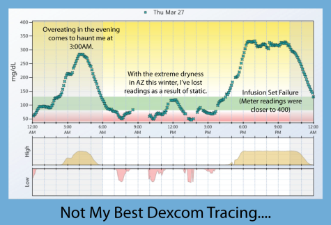 Dexcom Tracing